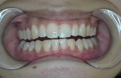 Case 11 - After Braces