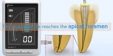 Digital apex locator determines root canal length