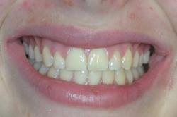 Case 10 - After Braces