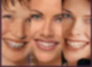 braces-multiple.jpg
