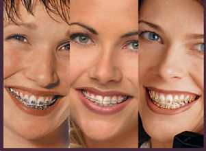 braces-multiple.jpg