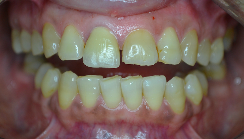 Case 2 - Before