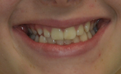 Case 10 - Before Braces