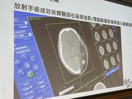 台大醫院助攻、獲美國FDA驗證!台灣醫療新創開發全球首套AI腦瘤自動圈選系統