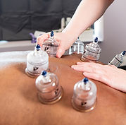 a photo of a Massage Therapist performing cupping therapy on client