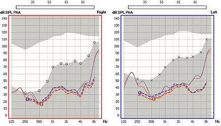 Μετρήσεις ακουστικού βαρηκοΐας