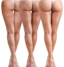 cellulite-removal.jpg