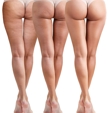 cellulite-removal.jpg