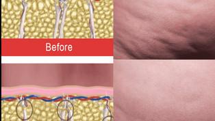 Cellfina une procédure unique au monde pour la cellulite des femmes