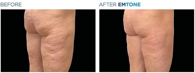 emtone-cellulite-vorher-nachher-01_edite