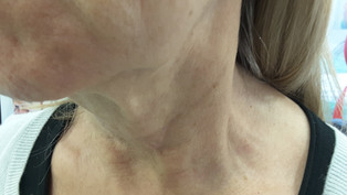 Ulthera seule alternative crédible au lifting chirurgical