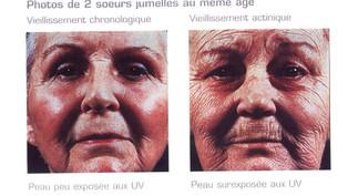 Les UV principaux facteurs de vieillissement