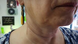 Ulthera marque exclusive de l'excellence pour le lifting par ultrasons