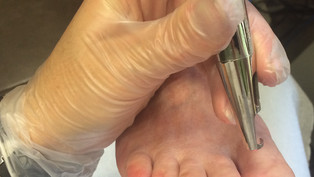 Traitement des mycoses des ongles par laser n d yag