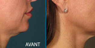Centre esthétique aquitaine pour le visage le cou le décolleté