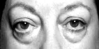 Poches sous les yeux sans chirurgie c'est possible