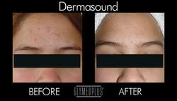 DermaSound Before & After Treatment
