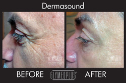 DermaSound Before and After