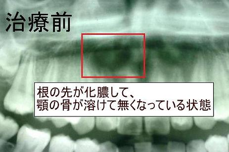 pict-kon-before3.jpg