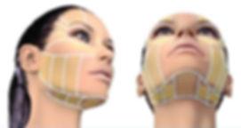 Hifu-Face-Zones.jpg