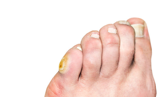 Corn on the pinky toe of a man's leg. Is