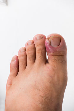 Close up of ingrown toenail is Inflamed