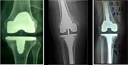 Infezione protesi ginocchio