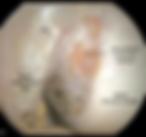 Anatomia del legamento crociato anteriore ginocchio