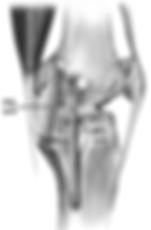 Legamento collaterale mediale ginocchio