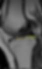 risonanza magnetica legamento crociato anteriore