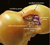 Anatomia legamento crociato posteriore ginocchio