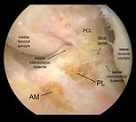 Anatomia legamento crociato anteriore
