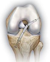 Ricostruzione mini-invasiva del legamento corciato anteriore