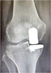 Protesi monocompartimentale ginocchio