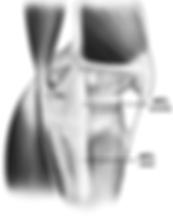 Lesione legamento collaterale mediale ginocchio