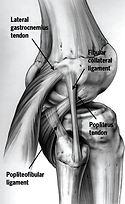 Lesione multilegamentosa ginocchio