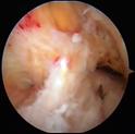 Lesione parziale del legamento crociato anteriore