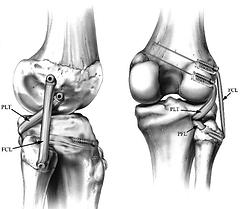Lesioni multilegamentose ginocchio