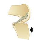 Lesione legamento crociato posteriore ginocchio