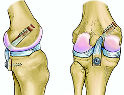 Tecniche ricostruzione legamento crociato posteriore ginocchio