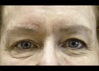 BTL_Exilis_PIC_4-Before-eyes-female-Hart