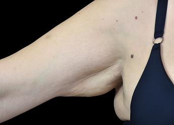 Emtone_PIC_005-Before-arm-female-BTL-Aes
