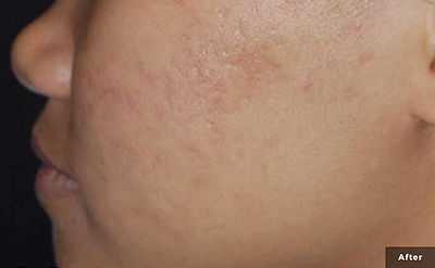 xeo-skin-resurfacing-acne-scars-lasergen