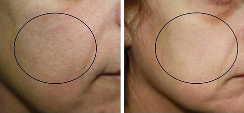 before-and-after-oxygeneo-10.jpg