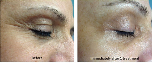 before-and-after-oxygeneo-7.jpg