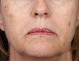 Aging face.jpg
