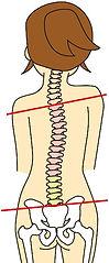 歪んでバランスが崩れた脊柱と骨盤