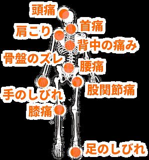頭痛、肩こり、首痛、四十肩、五十肩、背中の痛み、腰痛、椎間板ヘルニア、骨盤のズレ、股関節痛、手足のしびれ、膝関節痛、O脚、X脚の原因である骨格、骨盤の歪みを矯正する治療です
