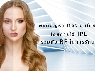 พิชิตปัญหา กระ บนใบหน้าโดยการใช้ IPL ร่วมกับ RF ในการรักษา