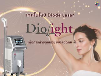 Diolight I : เทคโนโลยี Diode Laser เพื่อการกำจัดขนอย่างปลอดภัย